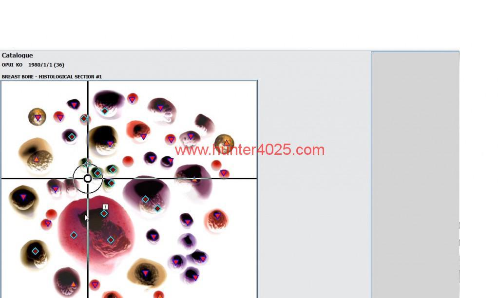 18D(HUNTER 4025 BEST ADVANTAGE) (6)