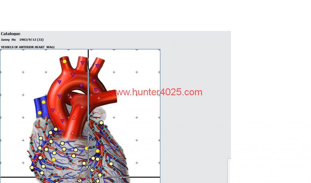 18d(hunter 4025) how to do deeply DNA analyzer (15)