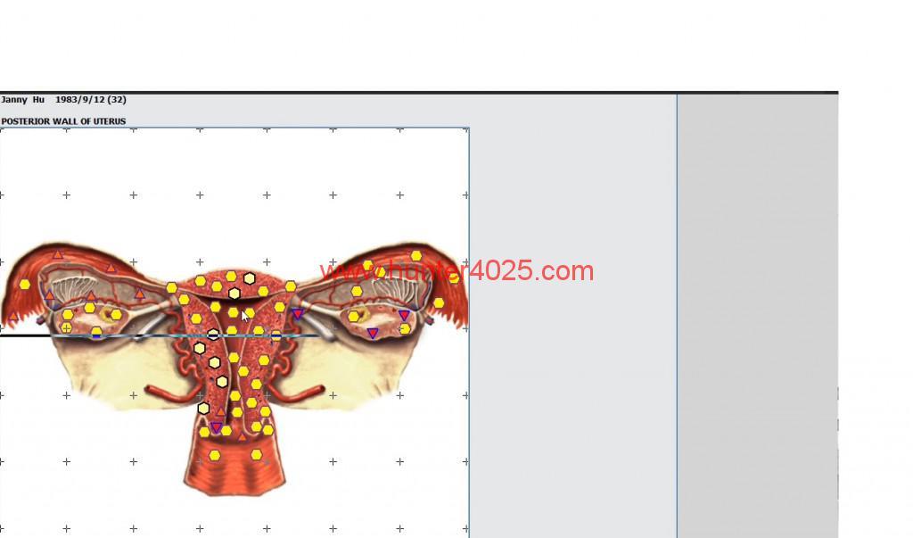 18d(hunter 4025) how to do deeply DNA analyzer (7)