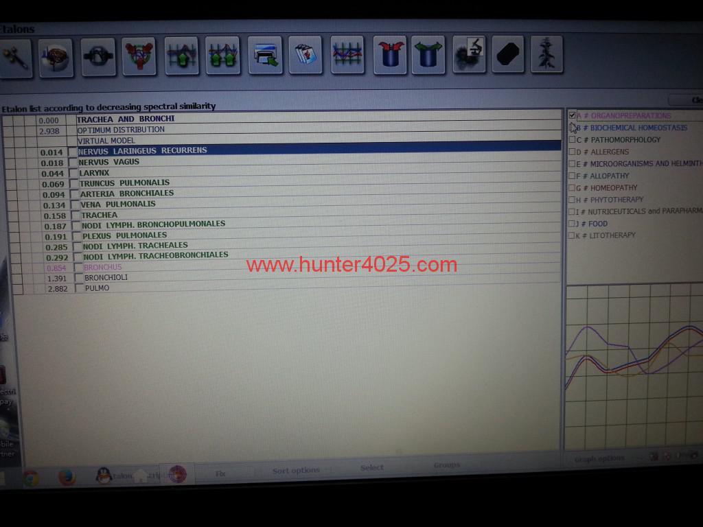metatron nls 25d nls bioresonance health analyzer (2)