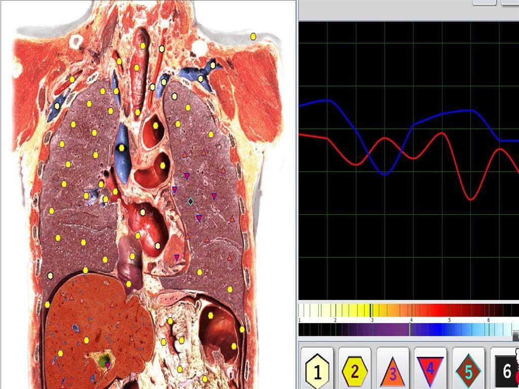 metatron aparat diagnostic