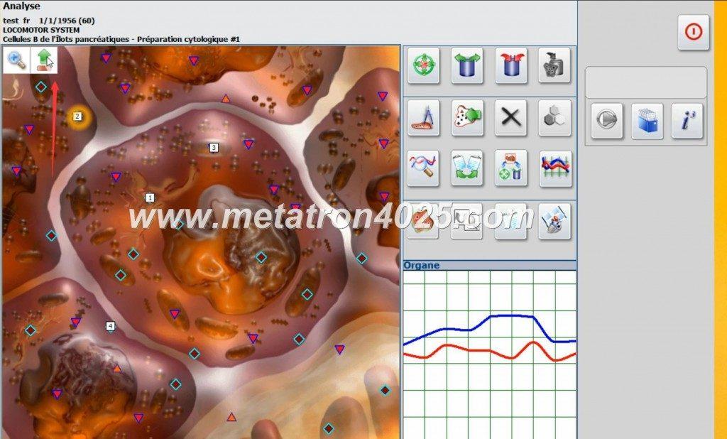 what is metatron nls