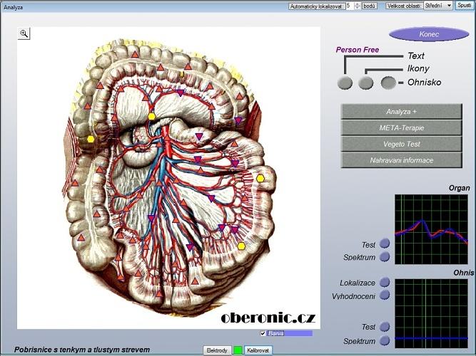oberon metatron diagnosis machine
