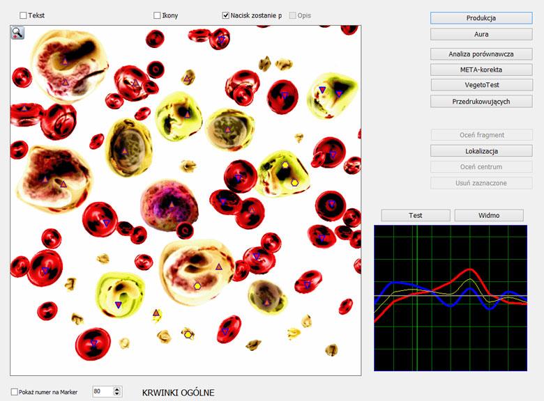 Zakres badań HUNTER – DIACOM 9D Rezonans Magnetyczno-Kwantowy określa