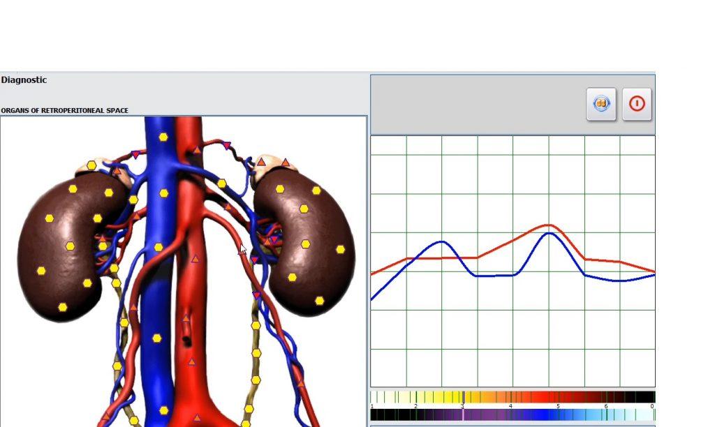 metatron diagnostika
