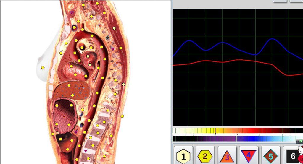 metatron diagnostik erfahrungen