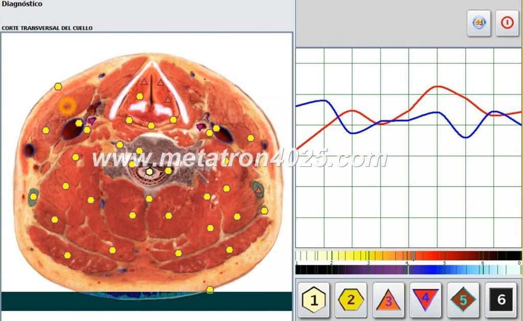 metatron oberon