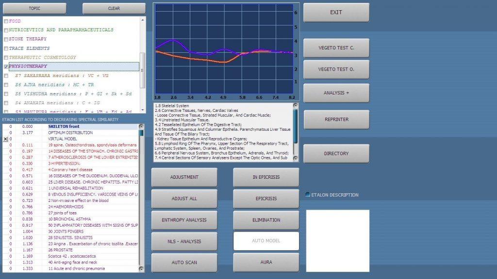 vector nls system analyzer