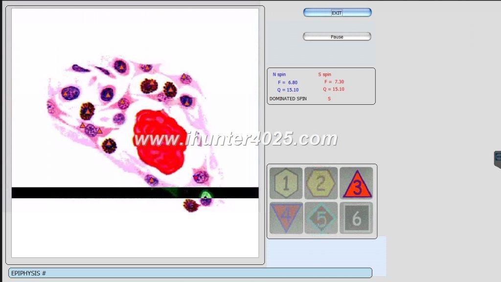 oberon diagnostic machine price