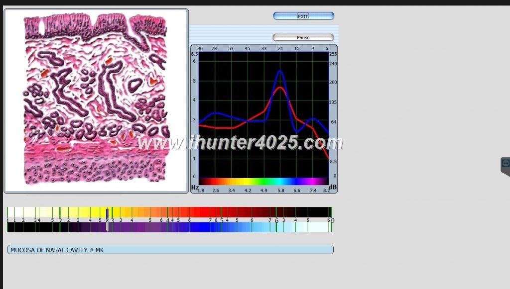 nls analyzer