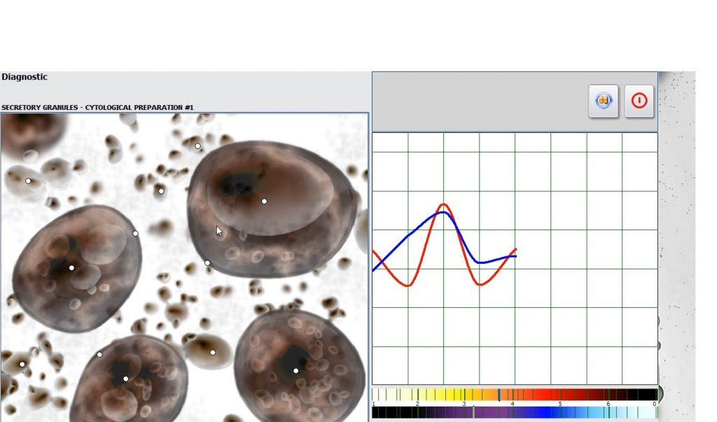 nls bioresonance