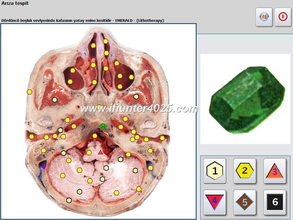 diagnostica metatron nls