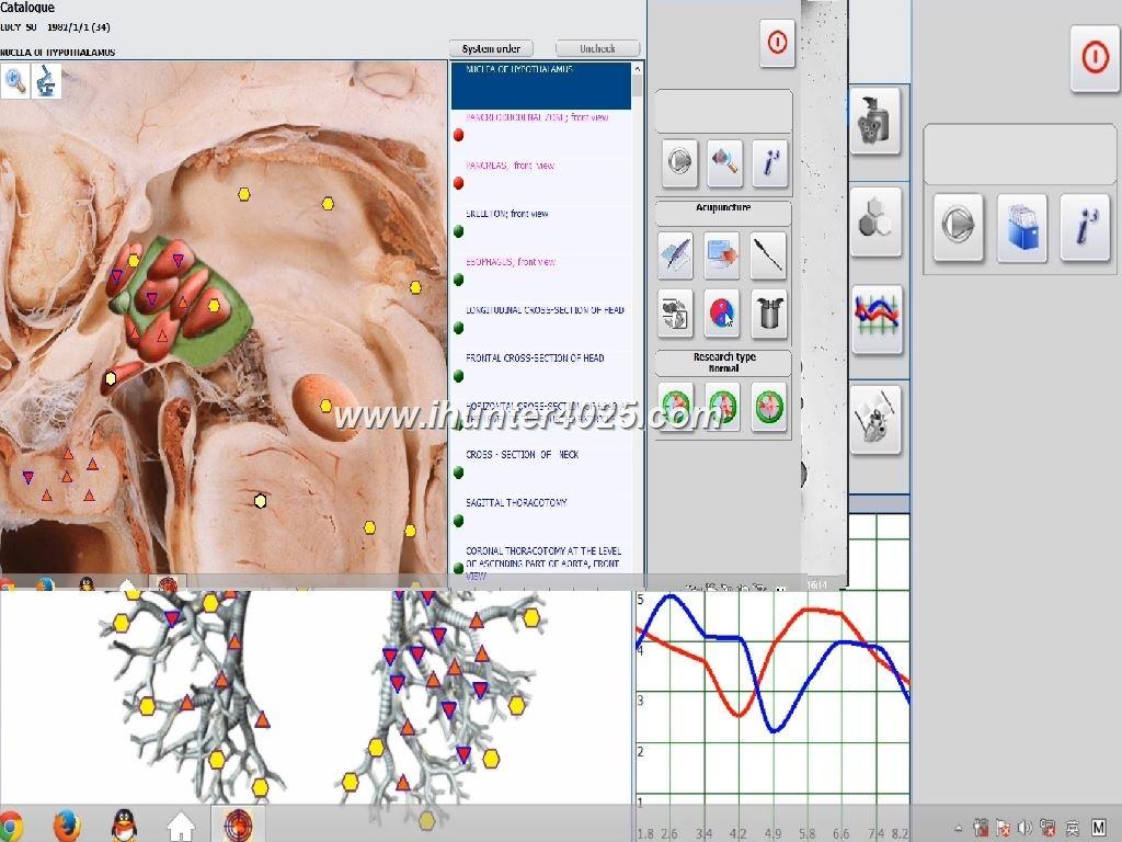 metatron nls bioresonance