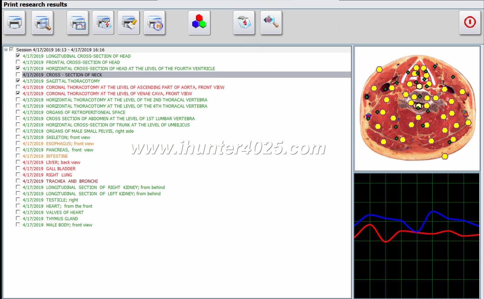 Metatron 4025 Hunter For Sale